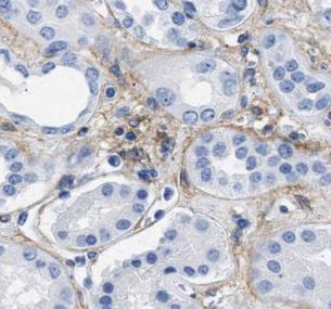 CD31抗体