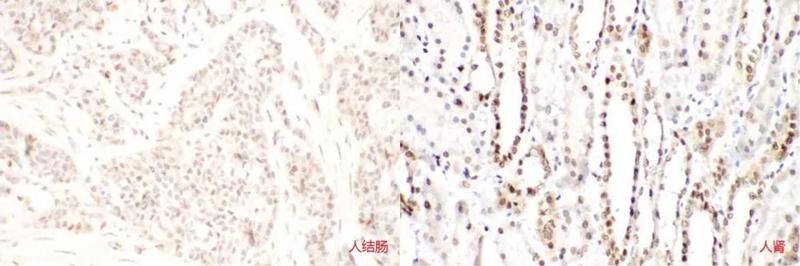 Immunohistochemistry-FNab07877 anti- SIRT1 antibody (200倍放大)